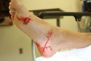 shawn hamilton shows of his foot, bitten in a shark attack