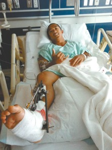 Marcelino Riglos recovers in hospital after being bitten on the foot by a shark while spearfishing off Maui.