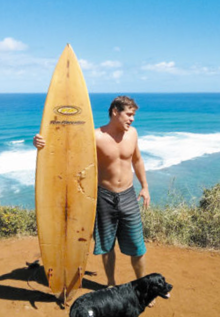 Jeff Horton shows the shark bite mark on his board after the attack at Pila'a, Kauai.